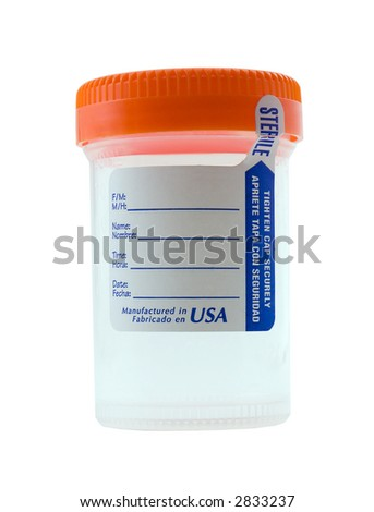 Photo of a urine sample bottle isolated on white