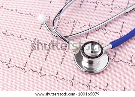 Photo of an electrocardiogram ECG or EKG printout with stethoscope - stock photo