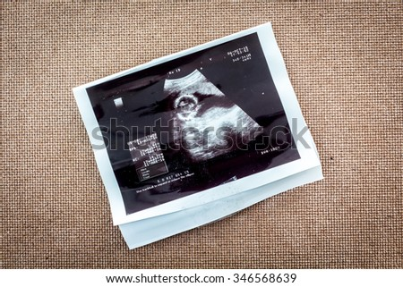 Photo of an ultrasound sonogram of an unborn baby - stock photo