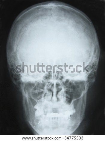 photo of frontal x-ray picture of human skull in natural colors - stock photo