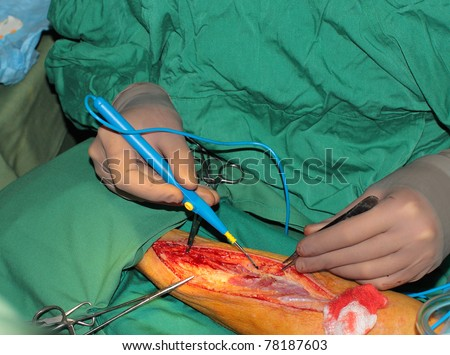 photo of the wound on his forearm. the selection of radial artery; - stock photo
