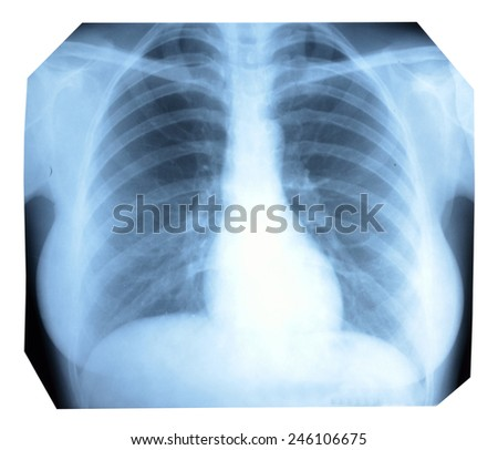 Photo X-ray of a healthy lung and heart - stock photo