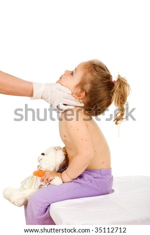 Physician examining kid with small pox or some skin rash - isolated - stock photo