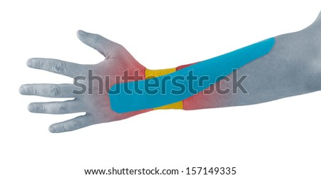 Physiotherapy treatment with therapeutic tape for wrist pain, aches and tension. It  is also used for prevention and treatment in competitive sports.