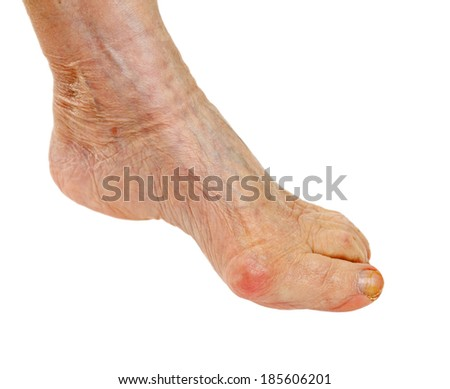 Picture of an elderly feet on isolated background - stock photo
