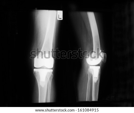 Plain film of left knee antero-posterior( AP)  and lateral straight view, demonstrated prosthesis in place. - stock photo