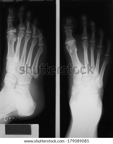 Plain film of right foot, AP and oblique views, in a 29 years old man who has injury from playing football; demonstrating fracture of the small bones of the ankle.