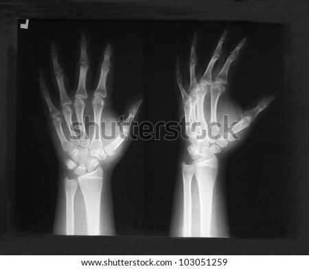 Plain X-ray film of left hand, antero-posterior and lateral view: Demonstrated injury of thumb. - stock photo