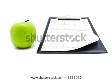 plane-table with a cardiogram and apple for your illustrations - stock photo