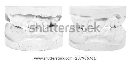 Plaster model before and after a brace