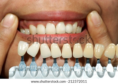 Plastic Dental implant to choose color tone that like real teeth  - stock photo