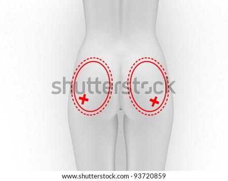 plastic surgery butt - stock photo