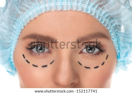 Plastic surgery. Cropped image of female face with marks on it isolated on white - stock photo