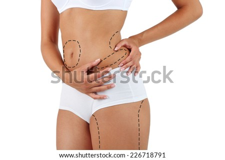 Plastic surgery. Liposuction. Slim body concept - stock photo