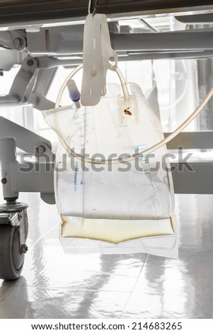 Plastic urine bag hanging under patient bed in hospital - stock photo