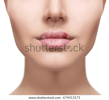 Herpes Zoster Stock Images, Royalty-Free Images & Vectors ...
