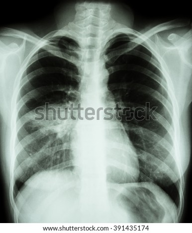 Pneumonia Film Chest Xray Show Alveolar Stock Photo. What Is A Roll Over Ira Email Marketing Suite. Arbonne Weight Loss Program Internet Usage. Cheapest Auto Insurance Florida. No Money Down Mortgage Programs. Carpet Cleaning Long Island Ny. Free Personal Calling Cards Ford Explorer 2. Insurance Murfreesboro Tn Law Schools Boston. Northwestern College Nursing