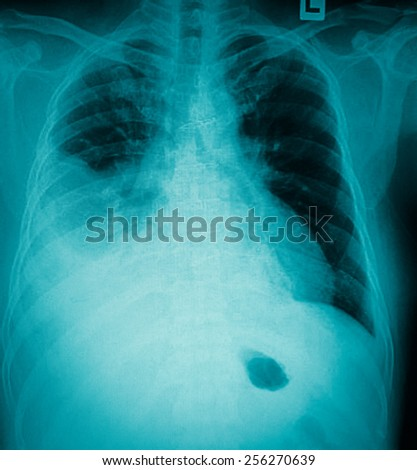 Pneumonia patients x-ray film. - stock photo