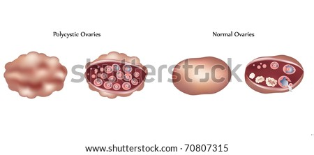 Polycystic ovary and normal ovary differences - stock photo