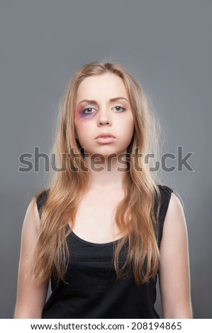 Poor young fair-haired girl with black eye wearing black shirt standing and thinking about brutality of her father. Isolated on grey background - stock photo
