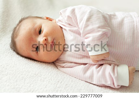 Portrait of a newborn baby close-up. On the face of the baby rash, acne  - stock photo
