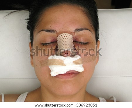 Portrait of a woman with her nose heavily bandaged after plastic surgery.