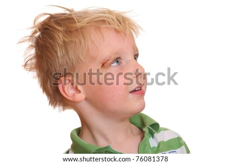 Portrait of a young boy with a scrape near his eye - stock photo