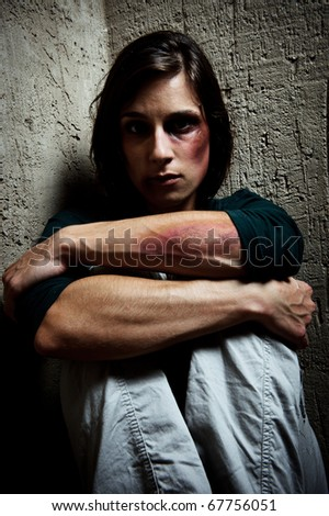 portrait of an abused woman with face and arms full of bruises - stock photo