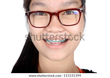 portrait of asian young girl with glasses and braces isolated on white background