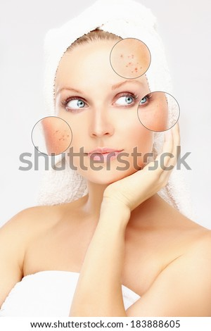 Portrait of beautiful woman with problem and clear skin, aging and youth concept, beauty treatment - stock photo