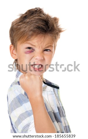 Portrait of boy with bruise, isolated on white background - stock photo