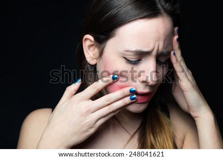 Portrait of desperate young woman touching her face. Concept of abuse and despair.  - stock photo