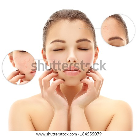 Portrait of girl with problem and clear skin, aging and youth concept, ( with herpes virus) - stock photo