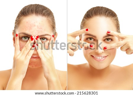 Portrait of  girl  with problem and clear skin.Girl covers her face in acne - stock photo