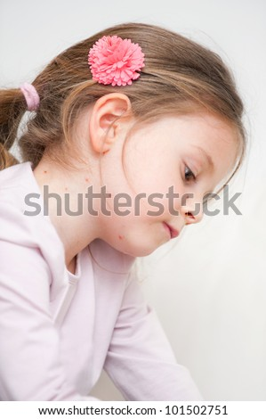 Portrait of small girl with chickenpox looking sad - stock photo
