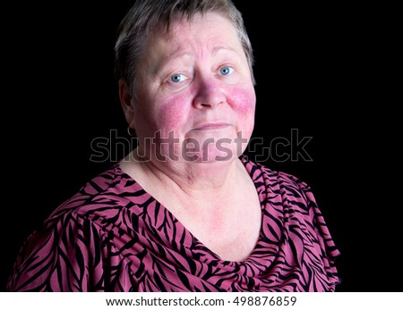 Portrait of unhappy sad senior woman with rosacea skin desease, photo studio portrait isolated on black background, colors manipulated