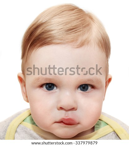 Portrait of young boy - dangerous sting from wasp near the eye - stock photo