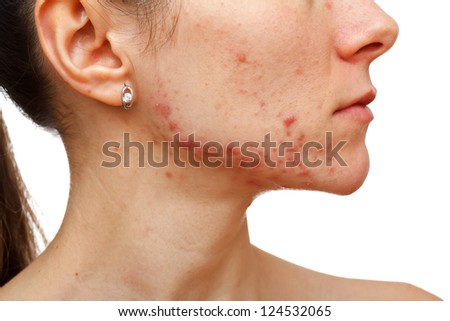 Portrait of young girl with skin problem on isolated white background - stock photo