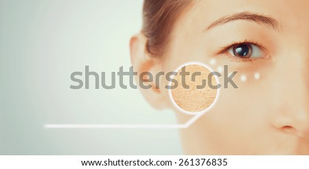 Portrait of young woman with dry part of face skin, beauty and skincare concept - stock photo