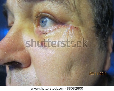 post operation eyelid lift in detail view - stock photo