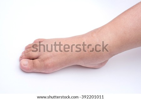 Pregnant women edema of foot