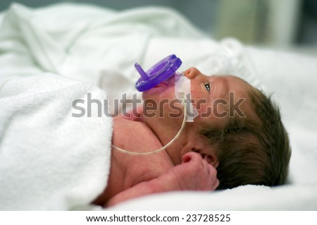 Premature baby at the hospital - stock photo