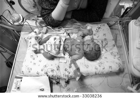Premature baby boy delivered by Caesarean section, in Neo Natal Intensive Care Ward at Hospital