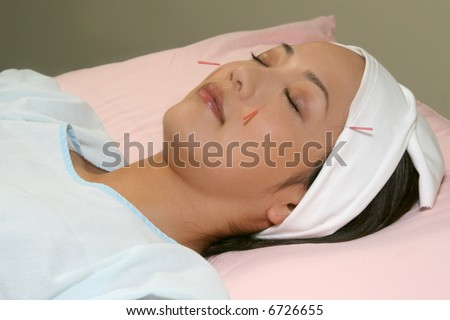 pretty asian woman getting acupuncture - stock photo