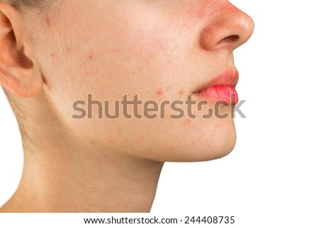 problem skin face - stock photo
