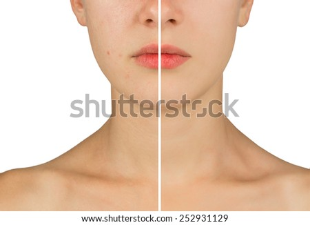 problem skin girl. before and after. Isolated on white background - stock photo