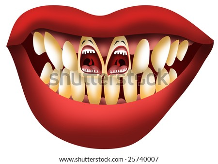 problem teeth screaming for help - stock photo