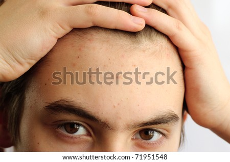 Problematic skin in by passage age, the pimples - stock photo