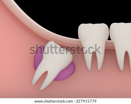 Problems caused by impacted wisdom teeth include.Cysts(rendering) - stock photo