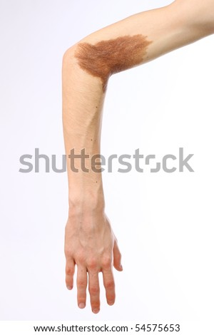 Problems of the skin on the hand - stock photo
